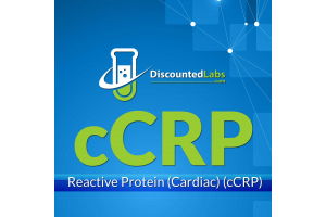 C-Reactive Protein (Cardiac) (cCRP) Test - What It Is and Why You Need it?