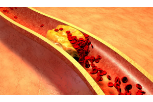 Blood Lipid Levels: Impact on Cardiovascular Disease