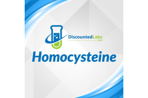 Homocysteine Blood Test - Symptoms, Complications, and Treatment
