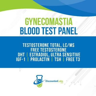 Gynecomastia Lab Test Panel