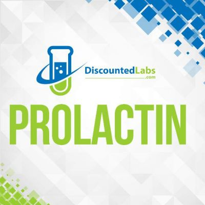 Prolactin lab blood test