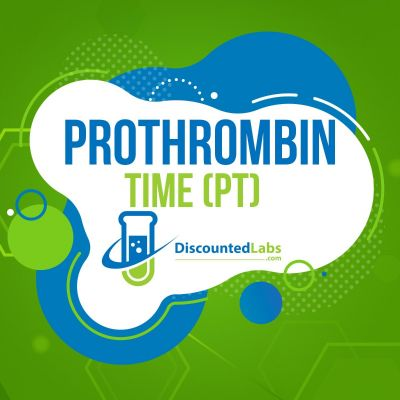 Prothrombin Time (PT) Test