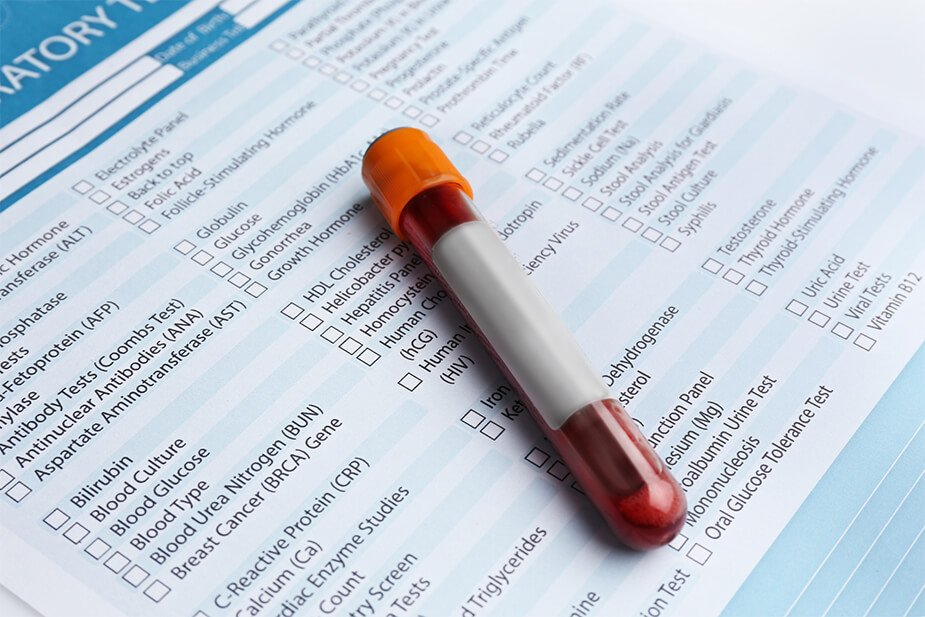 Factors that Can Affect the Accuracy of Your Blood Test Results