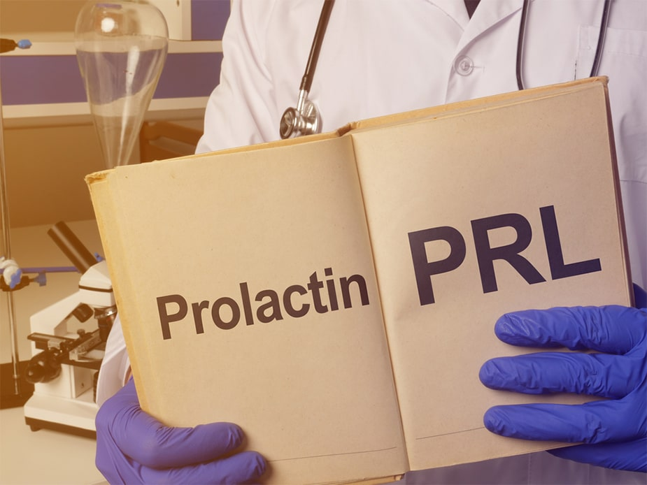 Prolactin lab test